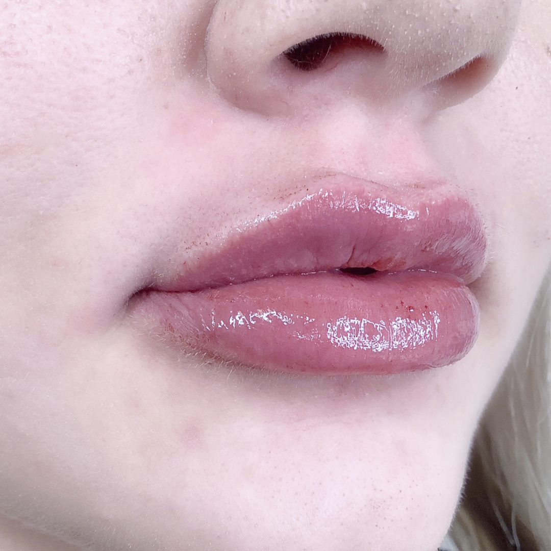 Full Lip After Example 2