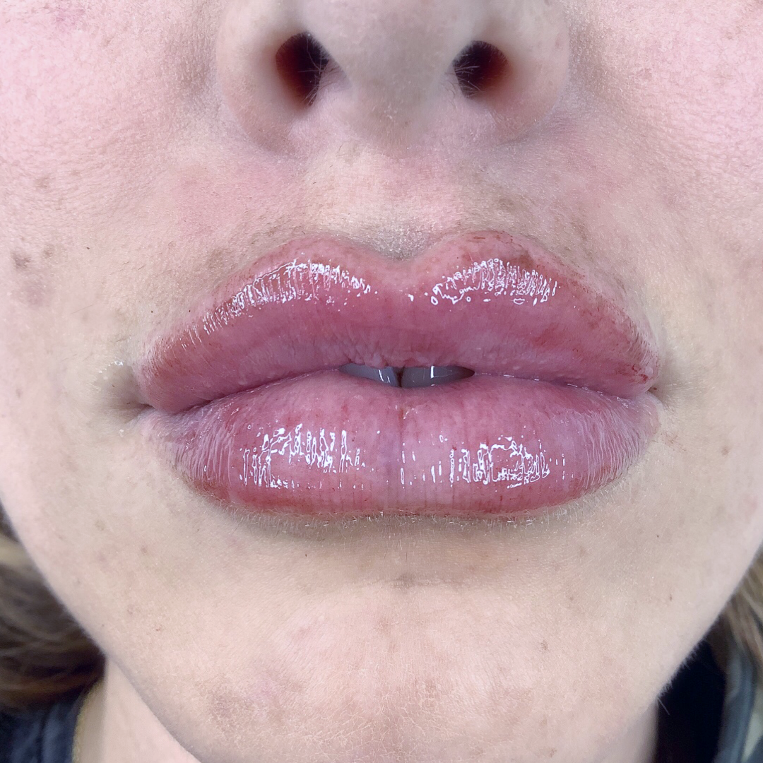Full Lip After Example 1