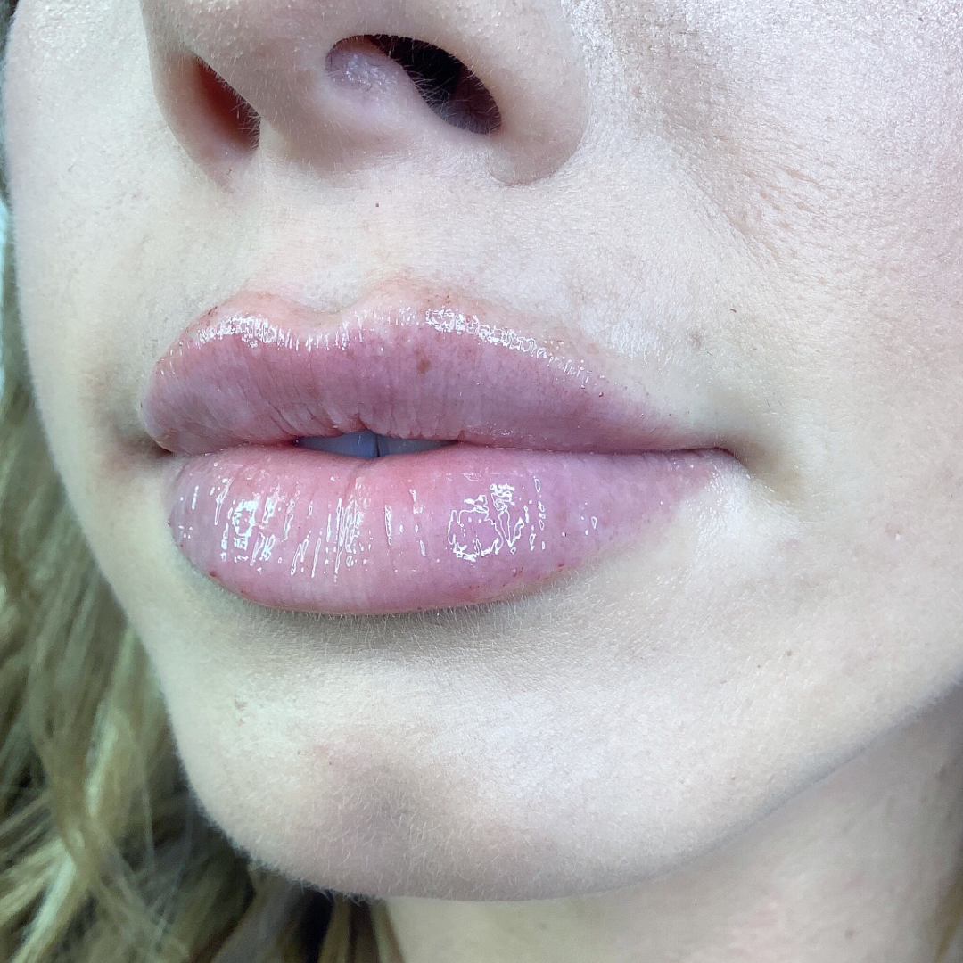 Full Lip After Example 3