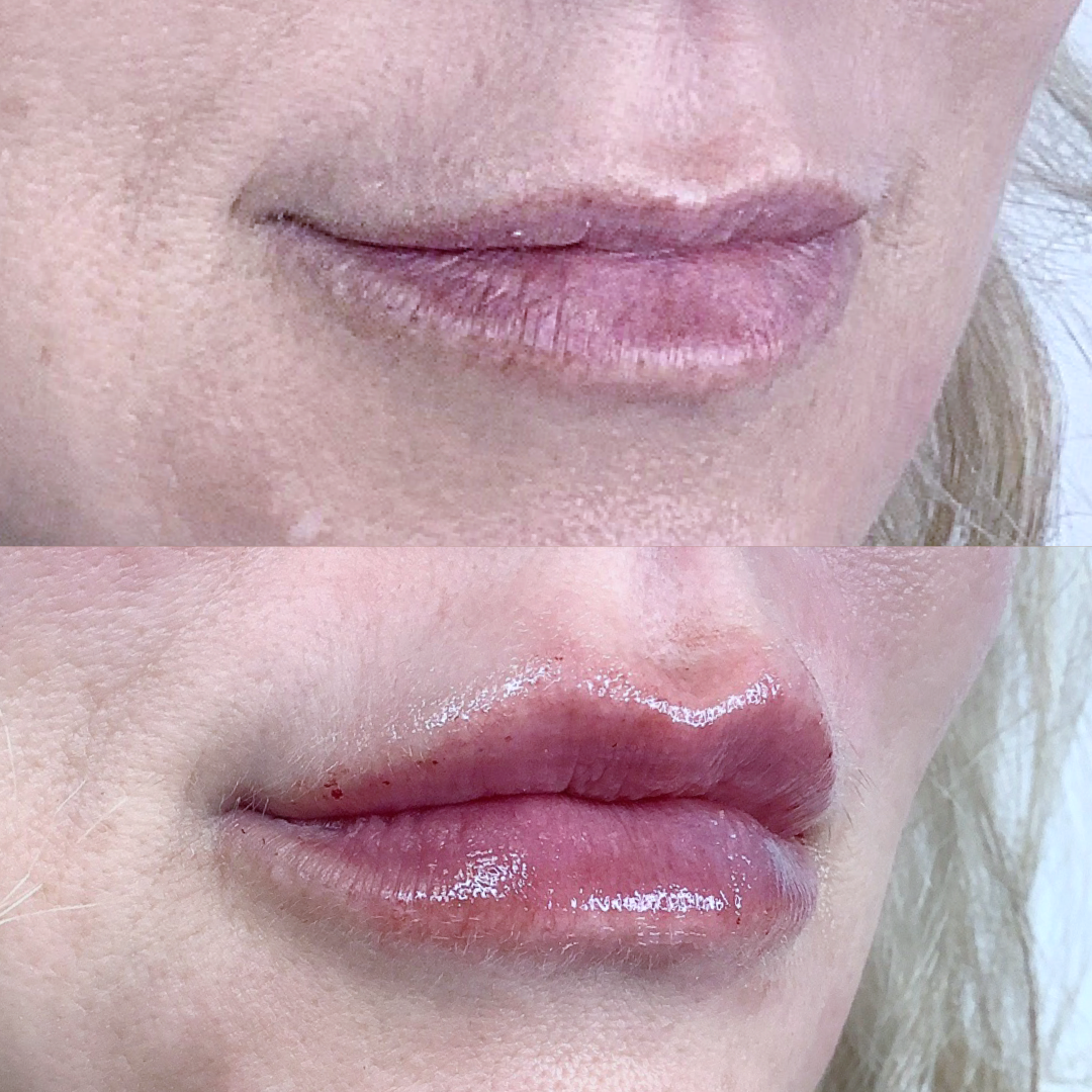 Mini Lip Before & After