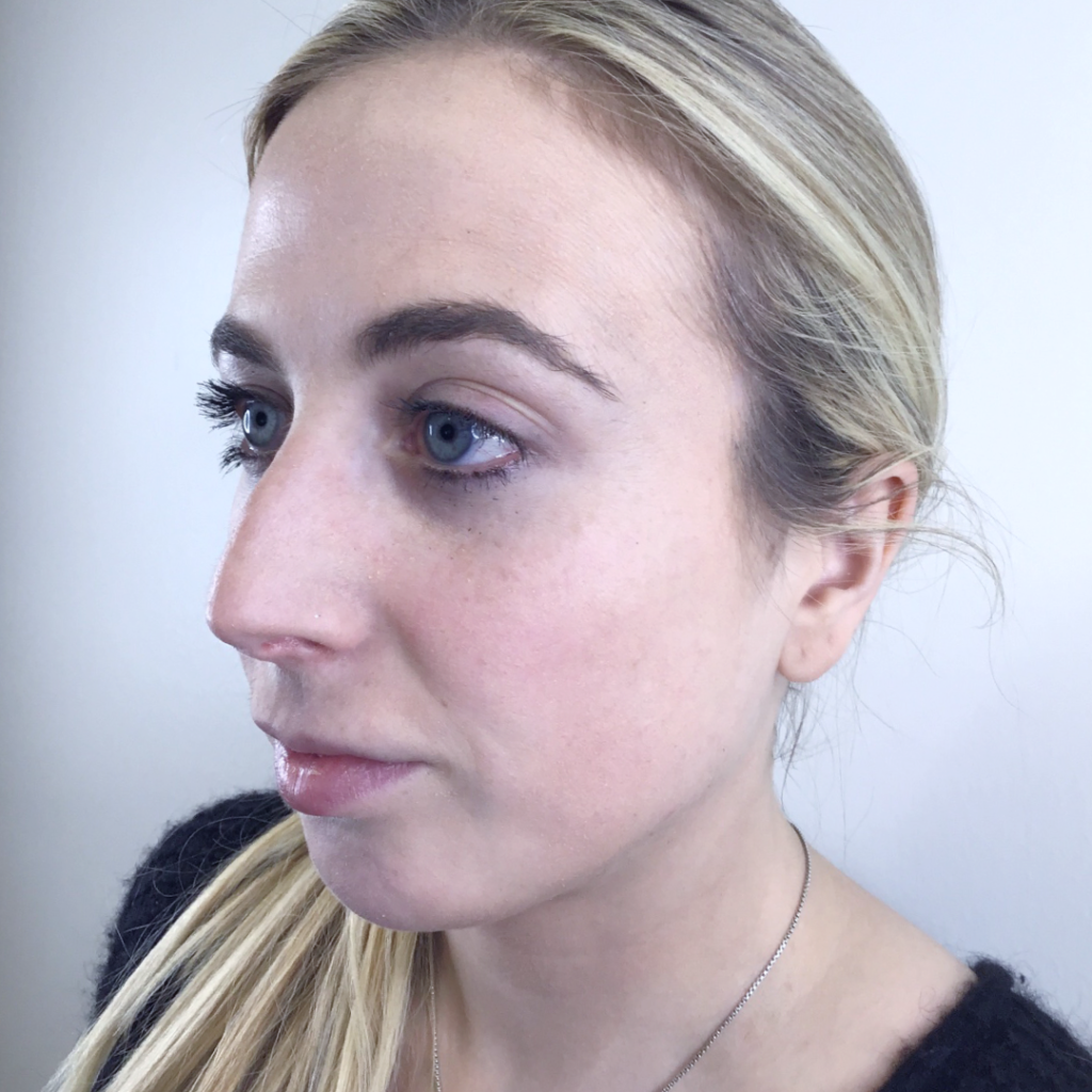 Chin Augmentation - Before