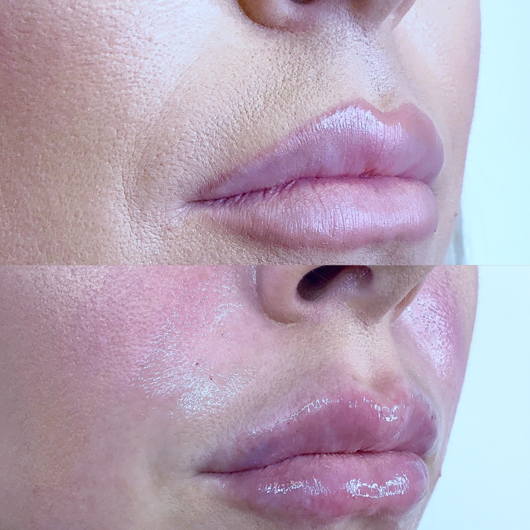 Naso labial Folds (Smile Lines)