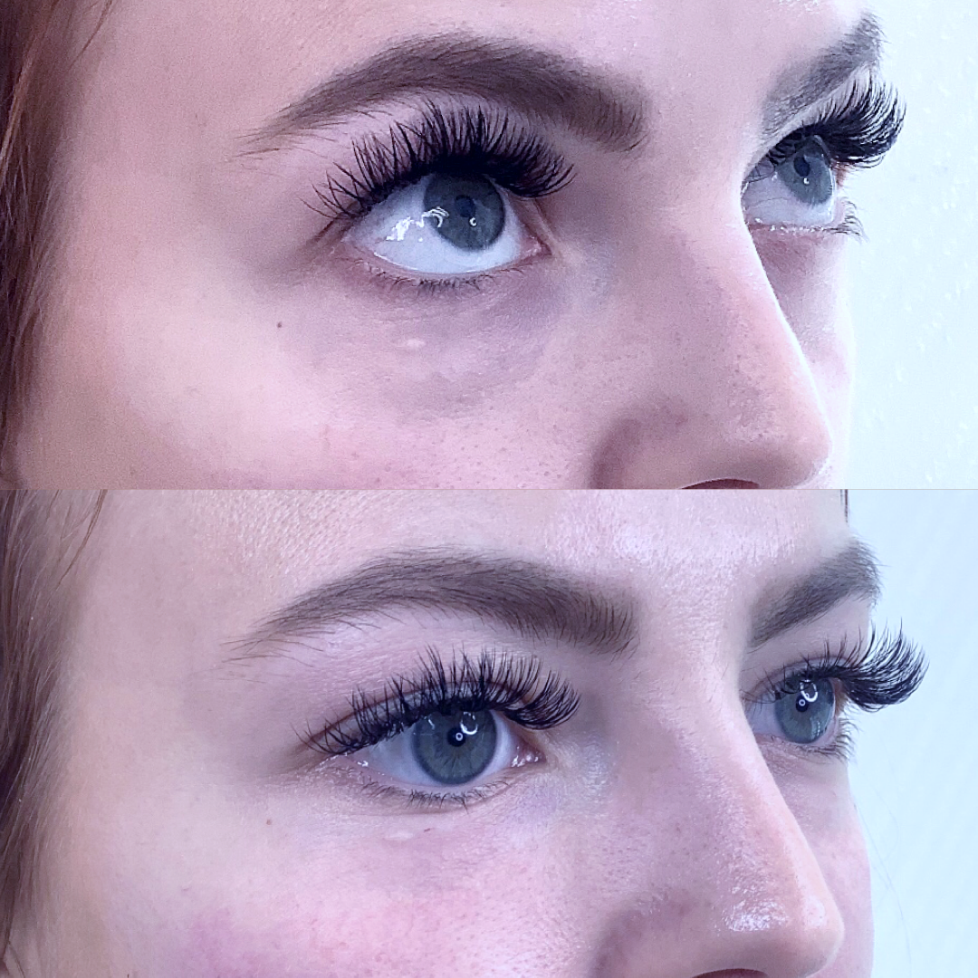 Tear Trough Correction (Under Eyes)